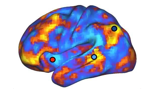 fMRI correlation color