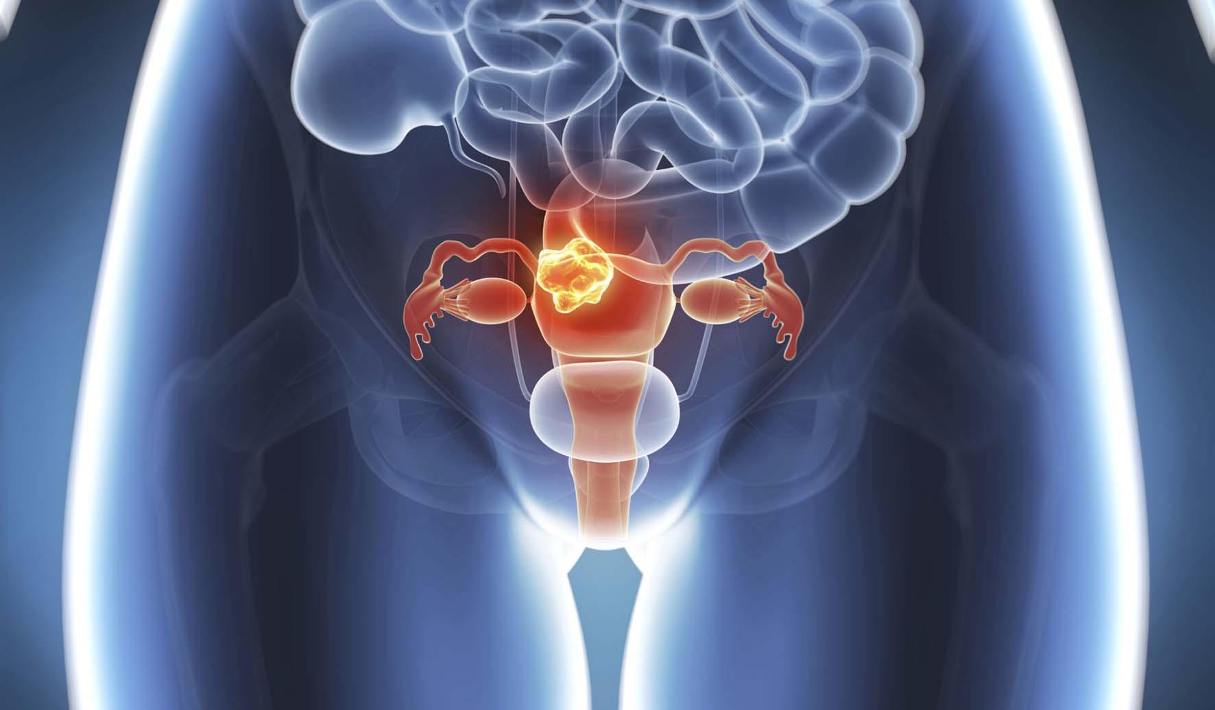guarigioni dai tumori tumore cervice utero grafica