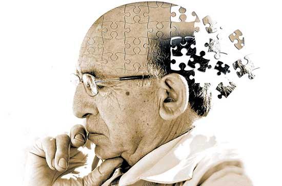 Alzheimer rid