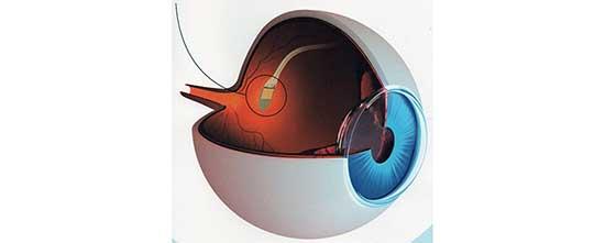 retinite pigmentosa chip visione artificiale