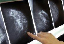 cancro al seno immunoterapia cura cancro