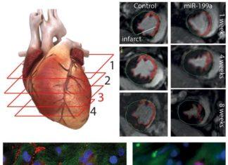 cura dell'infarto